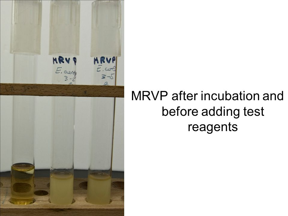 MRVP after incubation and before adding test reagents