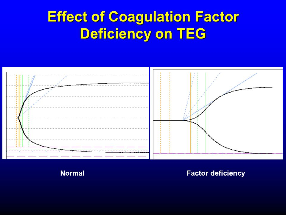 Effect of Coagulation Factor Deficiency on TEG