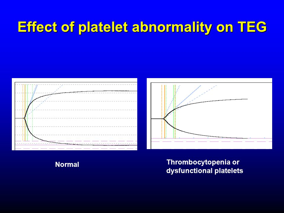 Effect of platelet abnormality on TEG