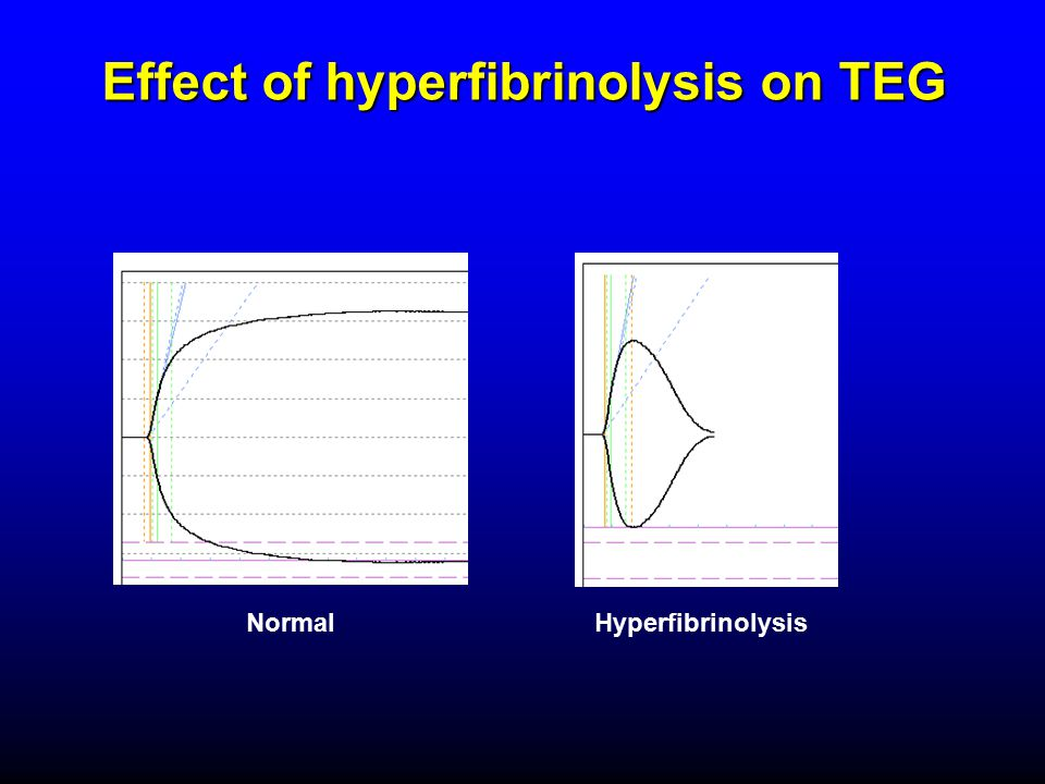 Effect of hyperfibrinolysis on TEG