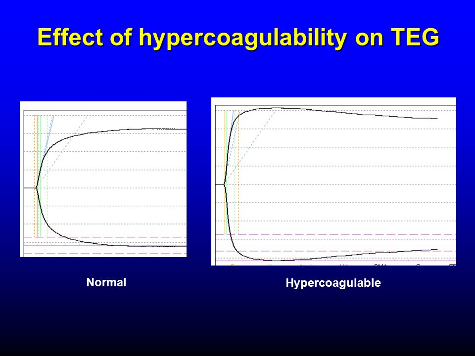 Effect of hypercoagulability on TEG