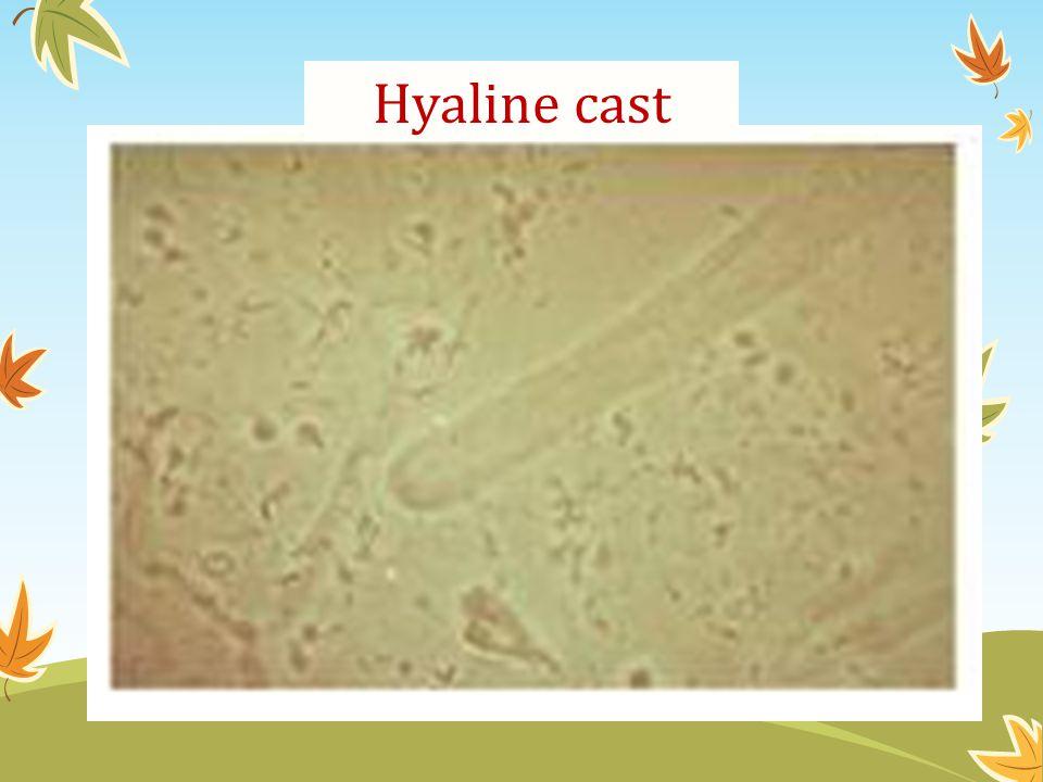 Hyaline cast