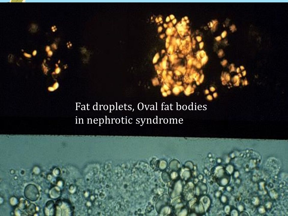 Fat droplets, Oval fat bodies in nephrotic syndrome