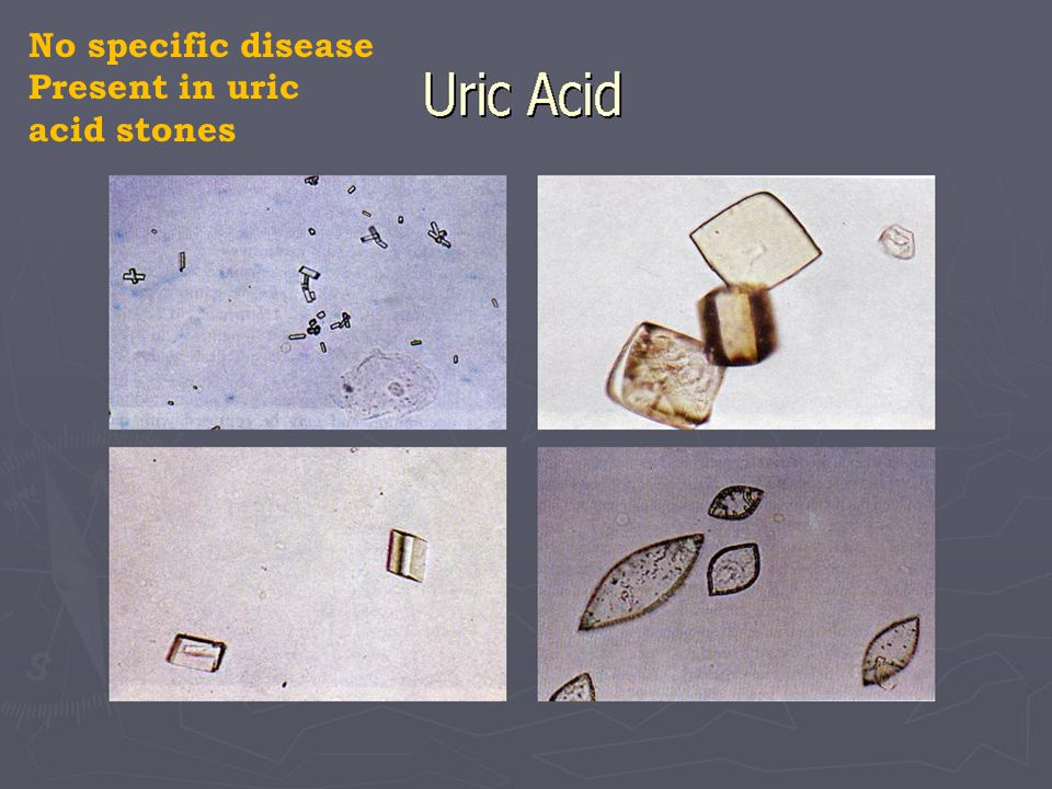 No specific disease Present in uric acid stones