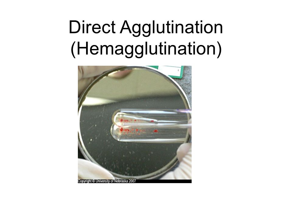 Direct Agglutination (Hemagglutination)