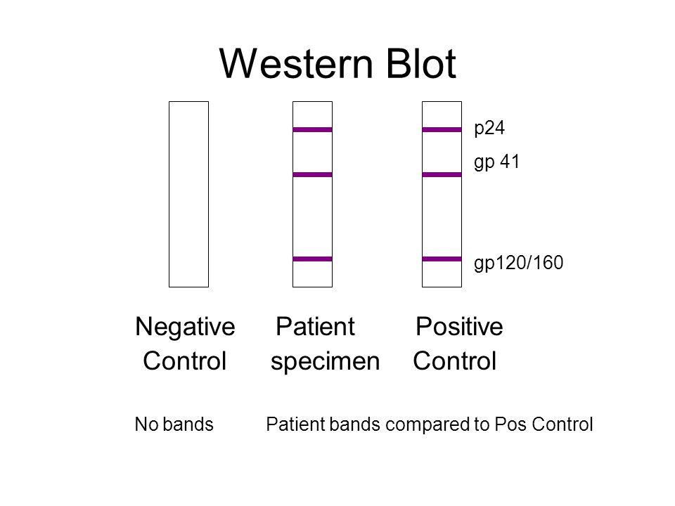 Western Blot Negative Patient Positive Control specimen Control p24