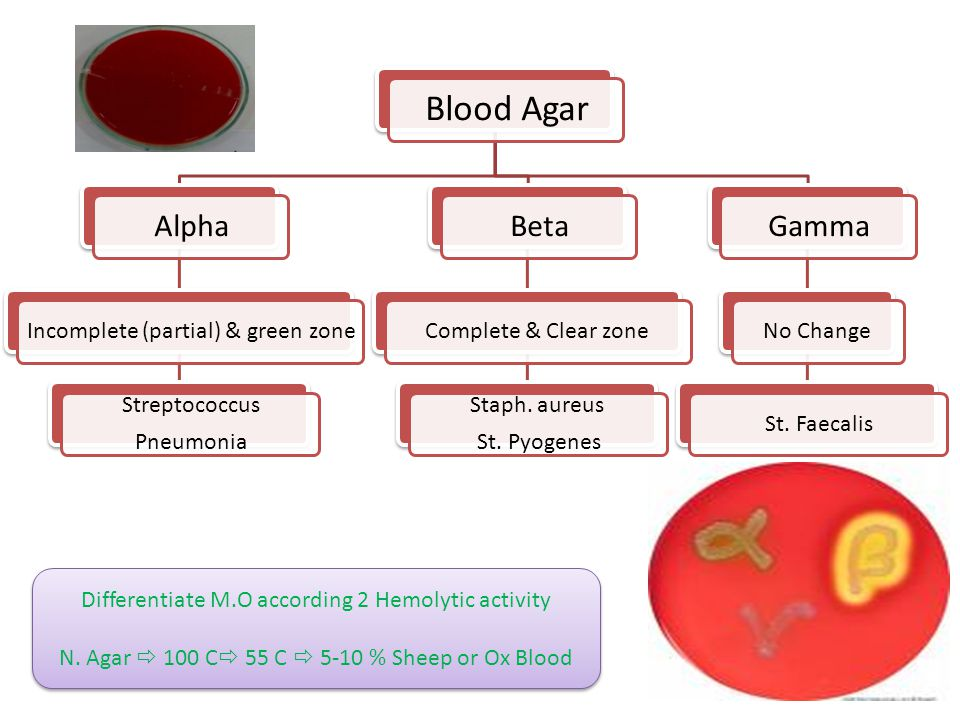 Blood Agar Alpha Beta Gamma Incomplete (partial) & green zone