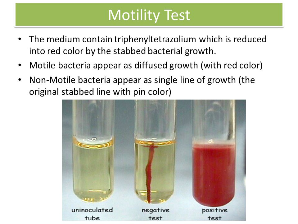 Motility Test The medium contain triphenyltetrazolium which is reduced into red color by the stabbed bacterial growth.