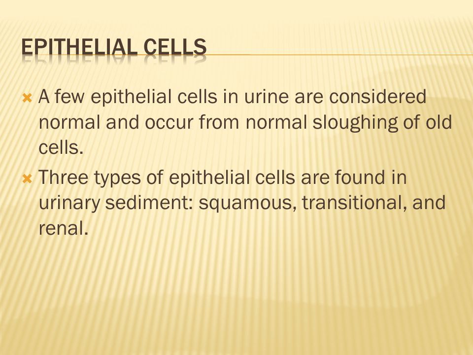 Epithelial cells A few epithelial cells in urine are considered normal and occur from normal sloughing of old cells.
