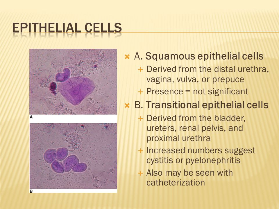 Epithelial Cells A. Squamous epithelial cells