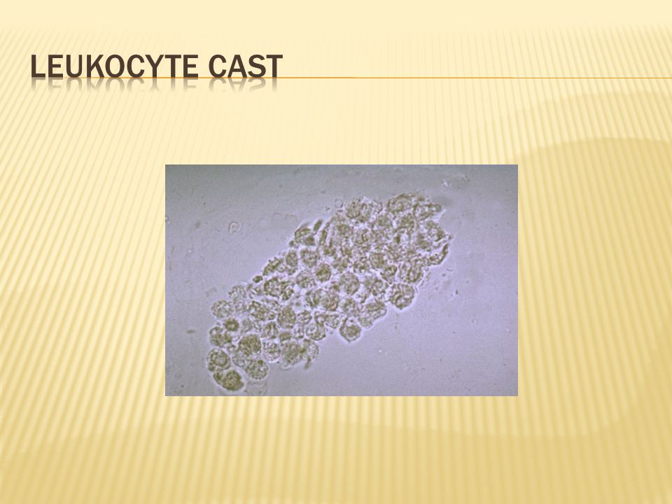 Leukocyte cast