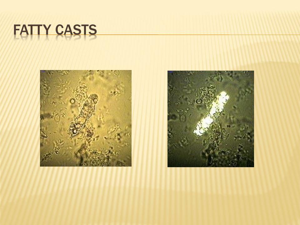 Fatty casts