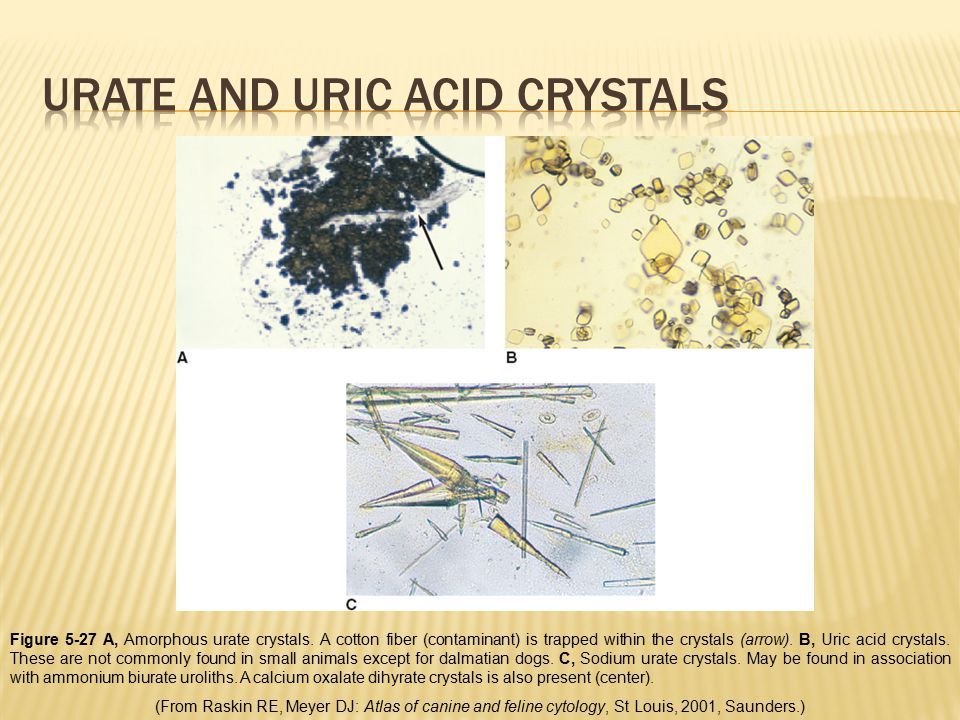Urate and uric acid crystals