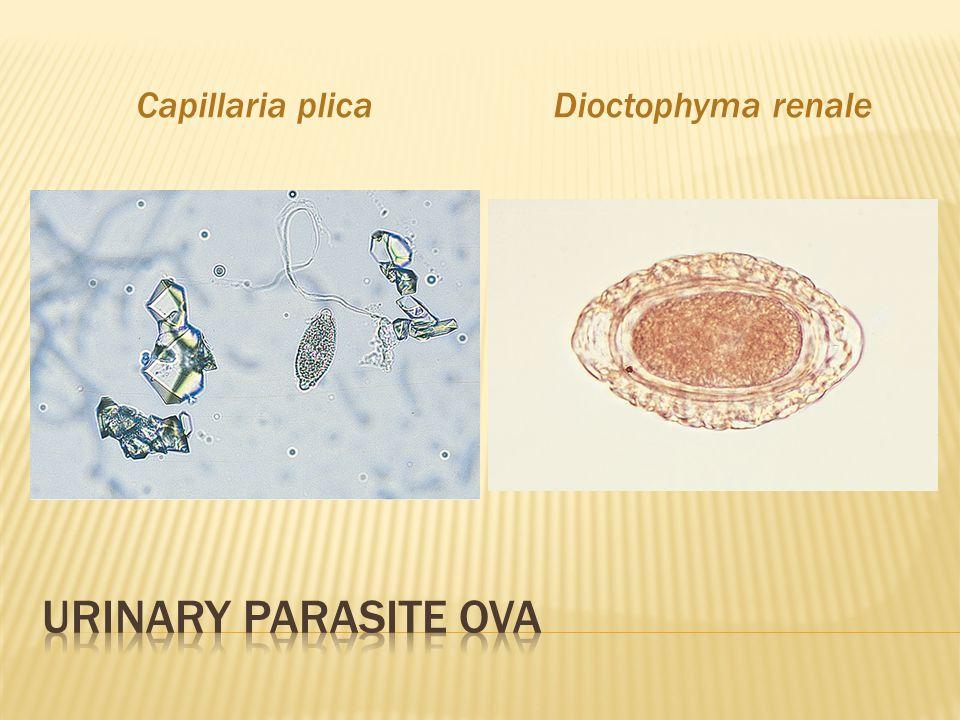 Capillaria plica Dioctophyma renale Urinary Parasite ova