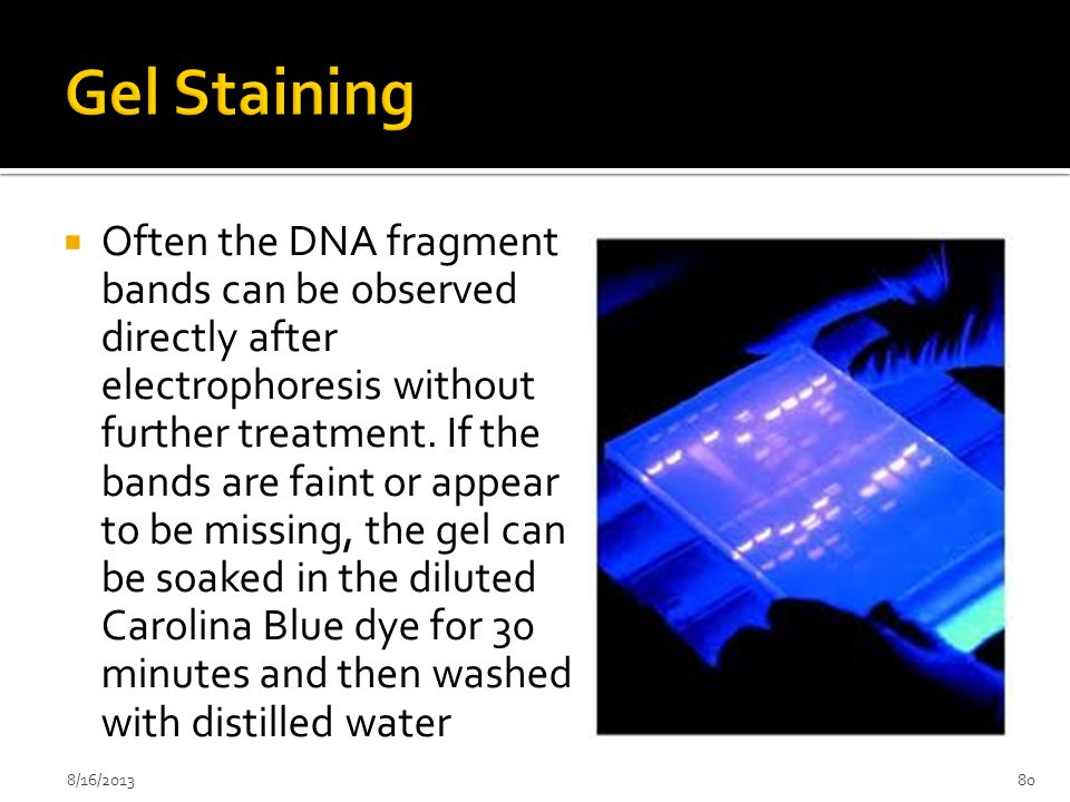 Gel Staining