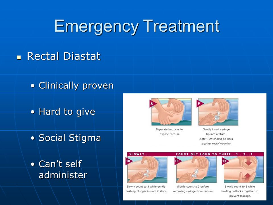 Emergency Treatment Rectal Diastat Clinically proven Hard to give