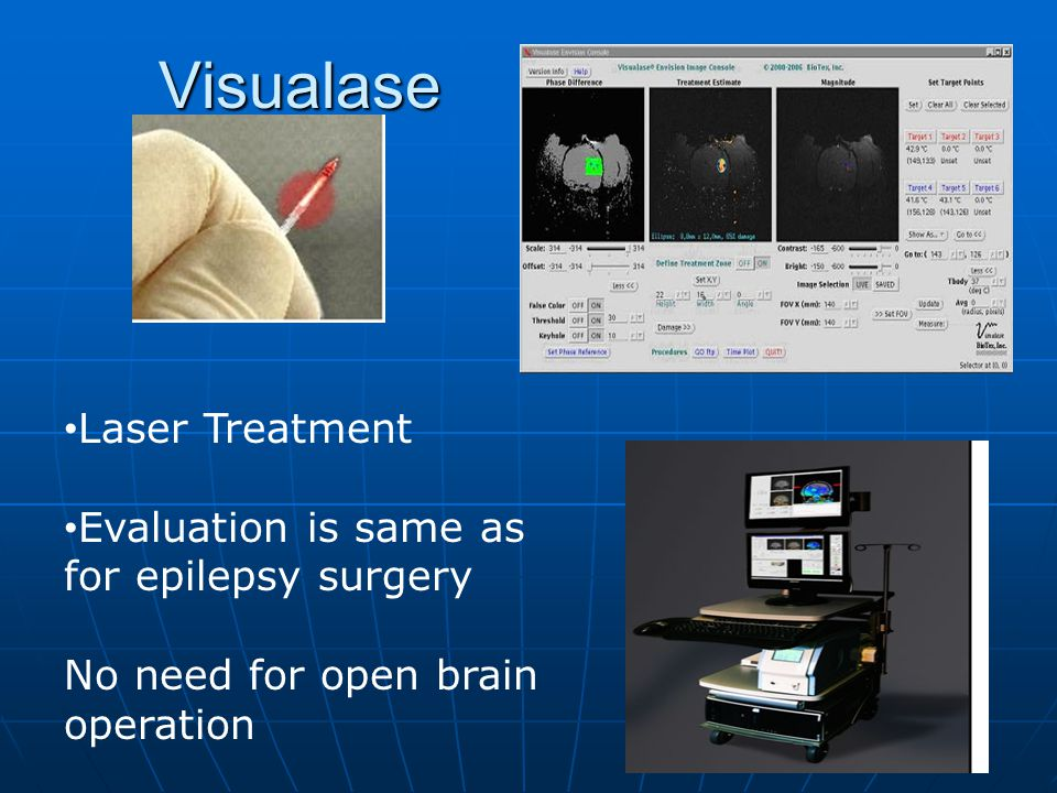 Visualase Laser Treatment Evaluation is same as for epilepsy surgery