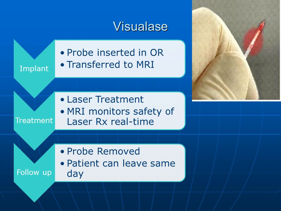 Visualase Implant Probe inserted in OR Transferred to MRI Treatment