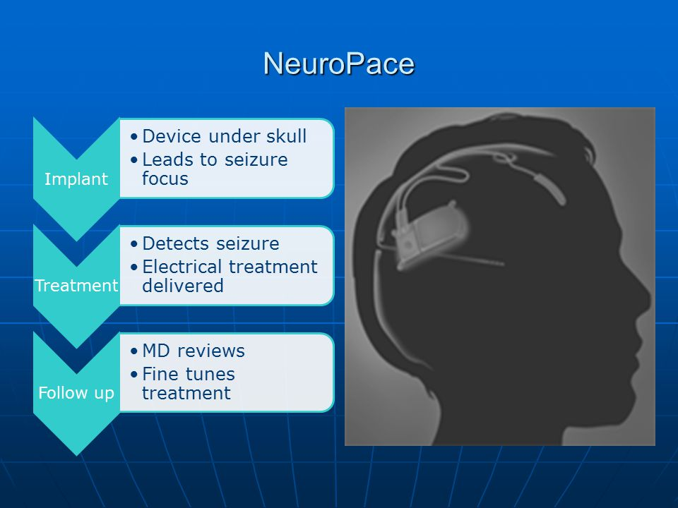 NeuroPace Implant Device under skull Leads to seizure focus Treatment