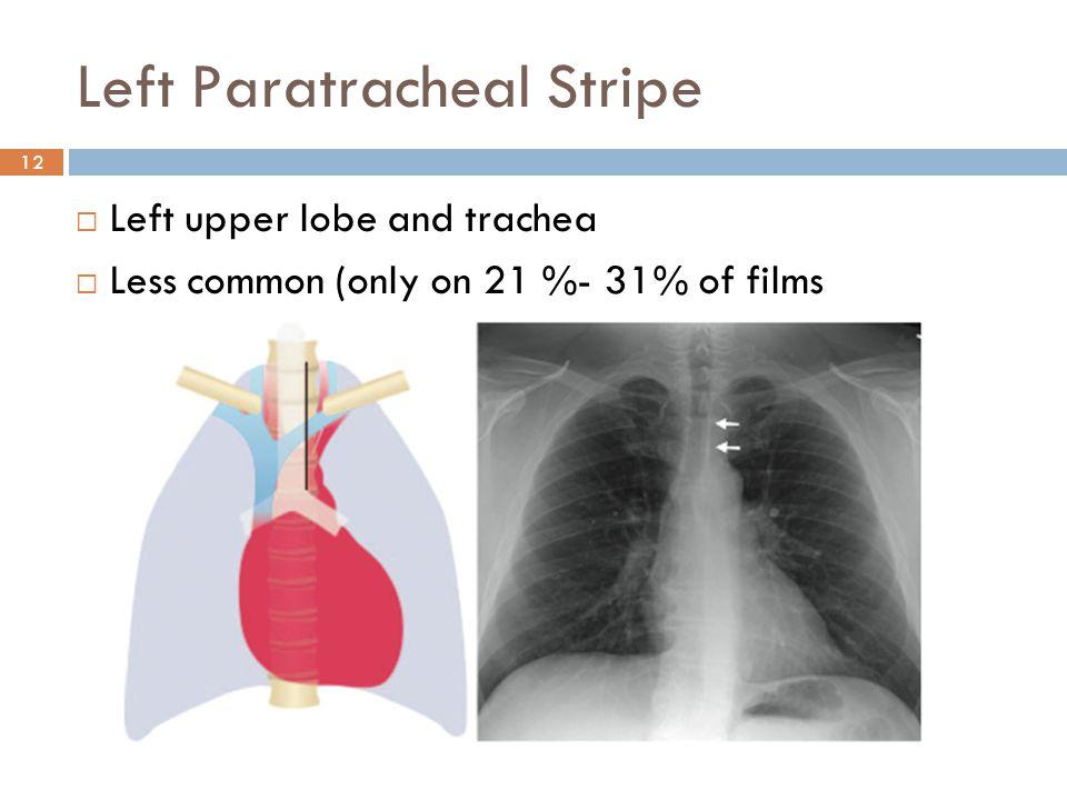 Left Paratracheal Stripe