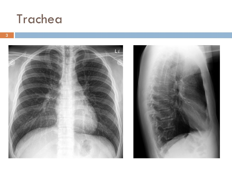 Trachea 3