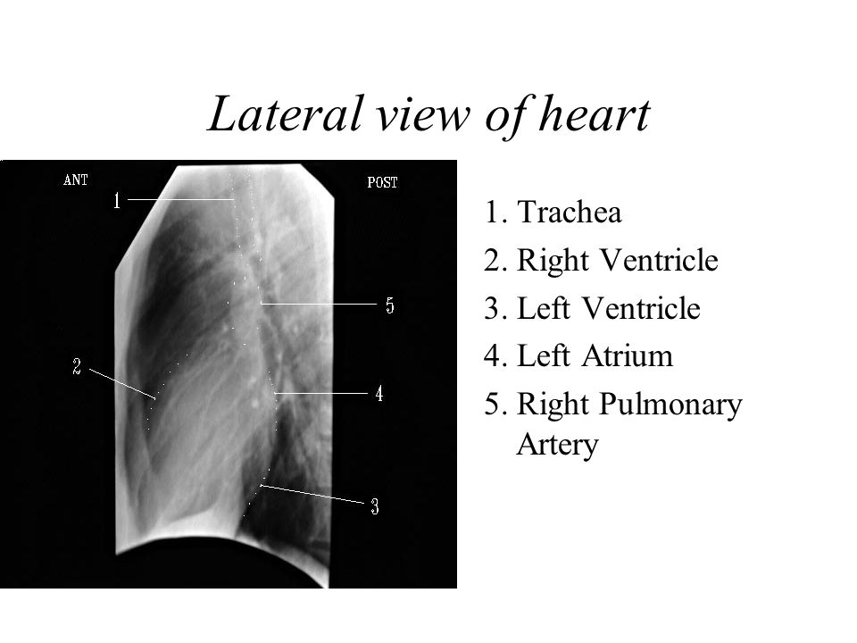 Lateral view of heart 1. Trachea 2. Right Ventricle 3. Left Ventricle