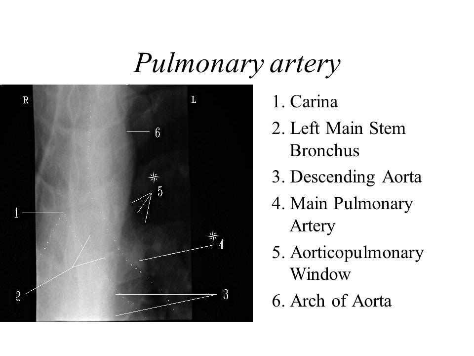Pulmonary artery 1. Carina 2. Left Main Stem Bronchus