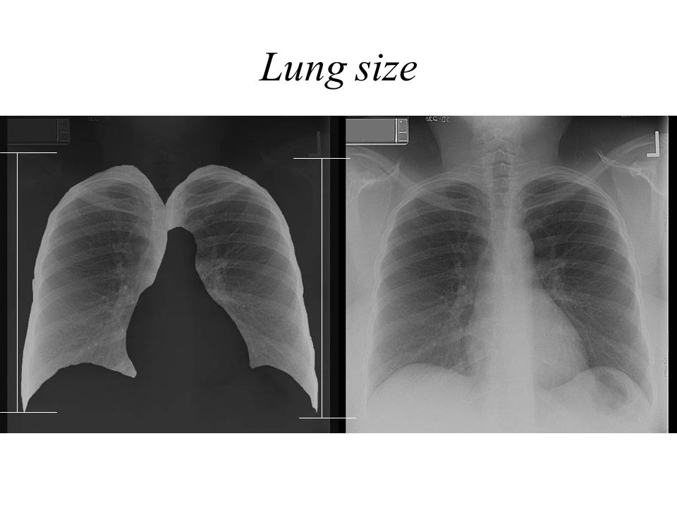 Lung size