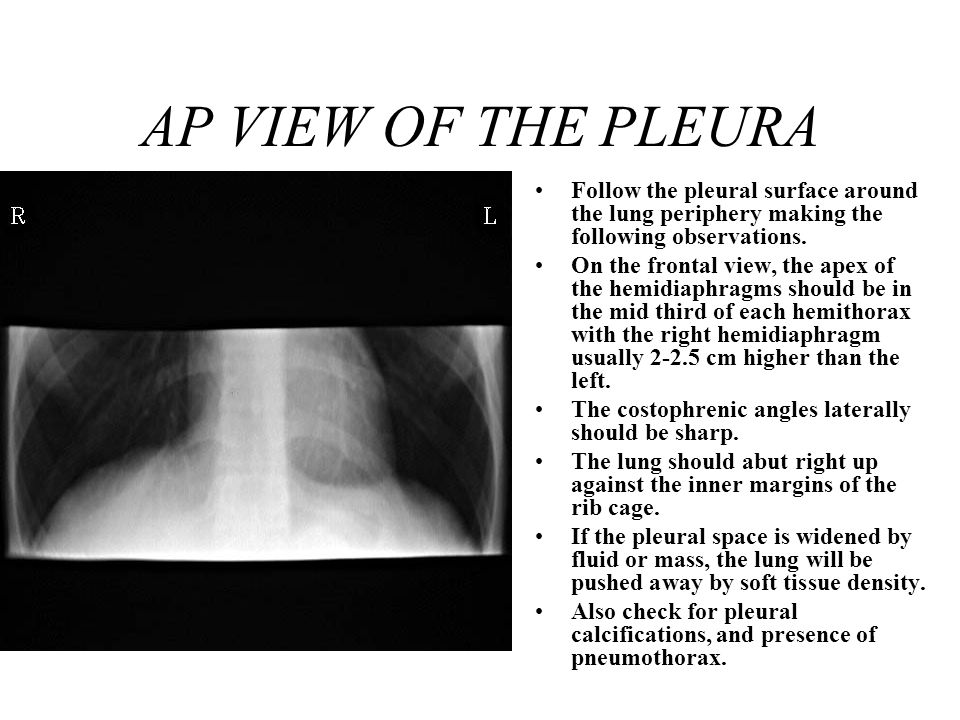 AP VIEW OF THE PLEURA Follow the pleural surface around the lung periphery making the following observations.