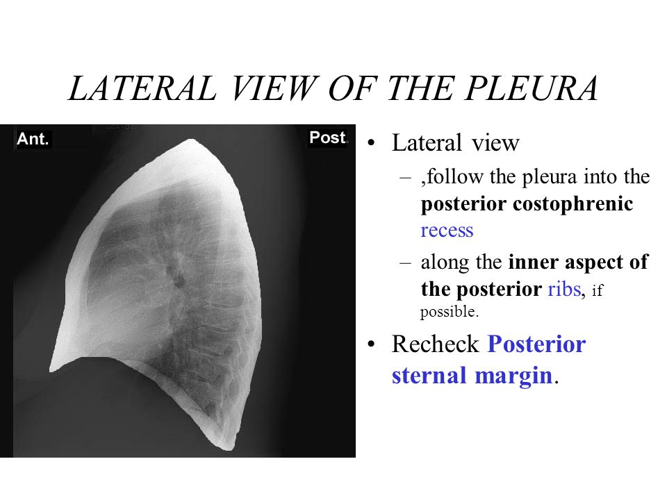 LATERAL VIEW OF THE PLEURA