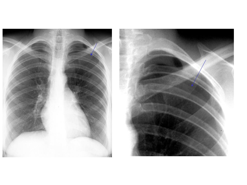 There is a small pneumothorax present on the radiograph to the left
