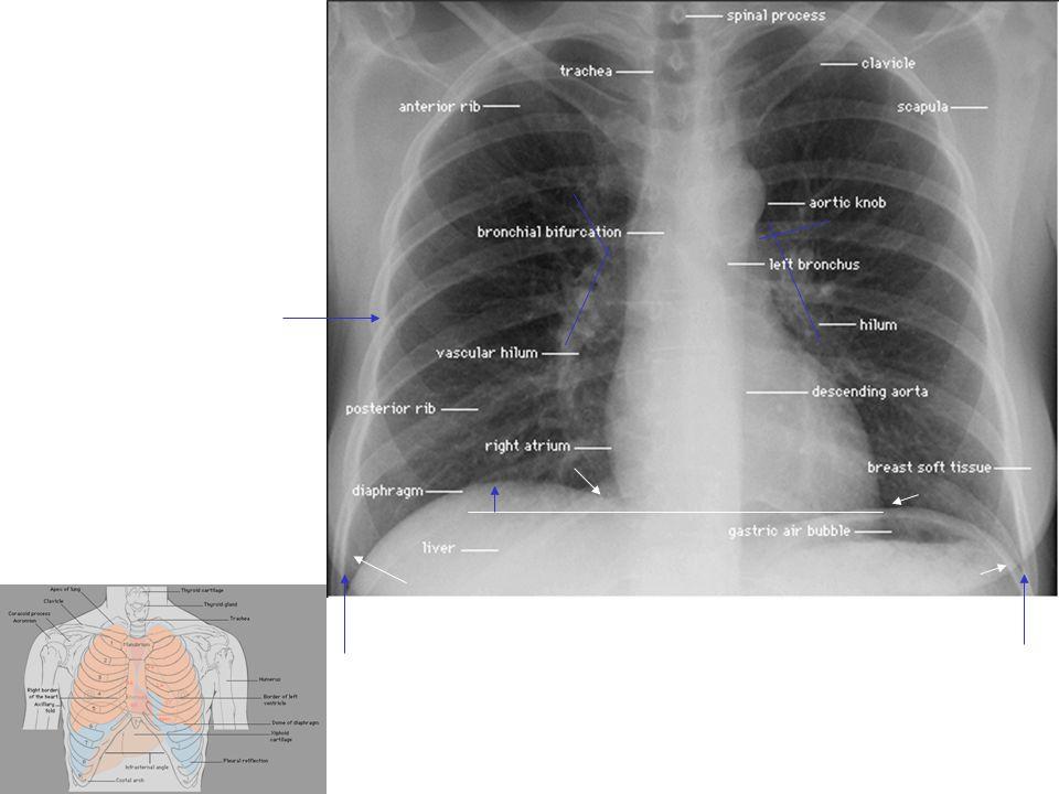 Diaphragm: 1.5-2 rib beadth(4 cm)