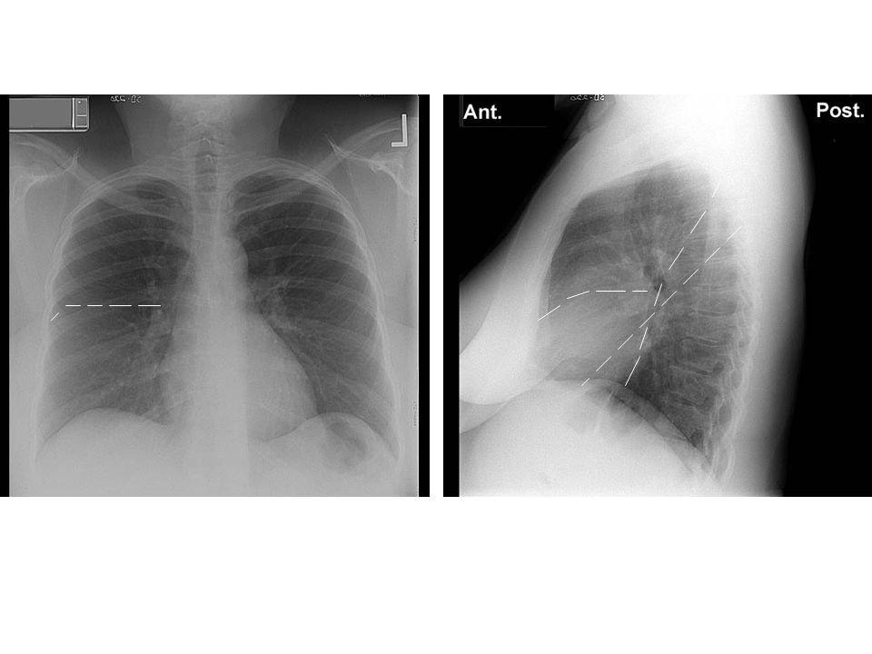 Type of film (although this is a chest program, practice noticing if it is a plain film, CT, angio, MRI, etc.)
