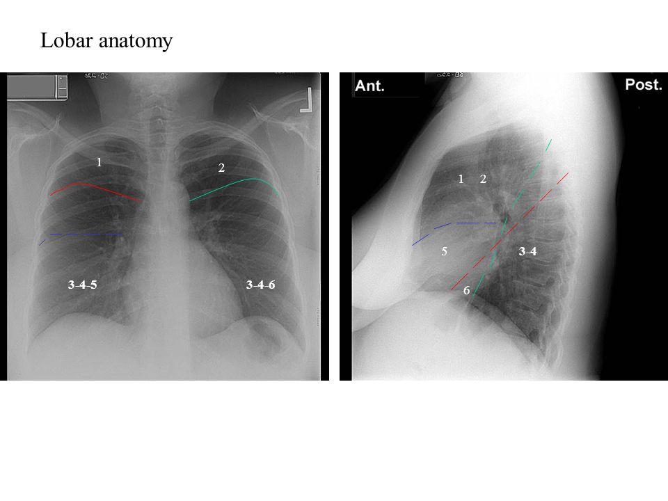 Lobar anatomy 1 2 1 2 5 3-4 3-4-5 3-4-6 6 1,2: Upper lobe
