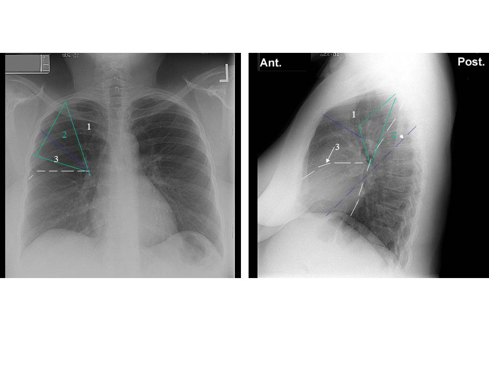 1 1. 2. 2. 3. 3. Type of film (although this is a chest program, practice noticing if it is a plain film, CT, angio, MRI, etc.)
