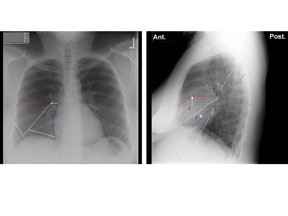 4 4 5 5 4: Middle lobe(Lateral) 5: Middle lobe (Medial )