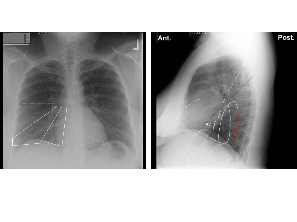 7 7 9 9 7: Medial basal 9: Lateral basal Contact major fissure: 7,8