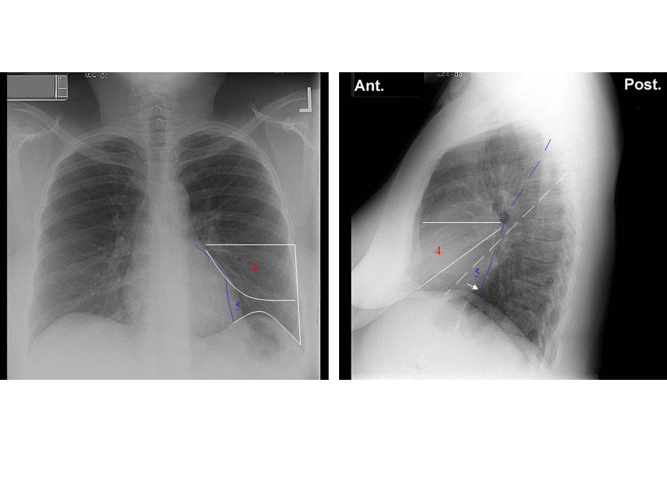 4 4 5 5 4: Middle lobe(Superior) 5: Medial (Inferior)