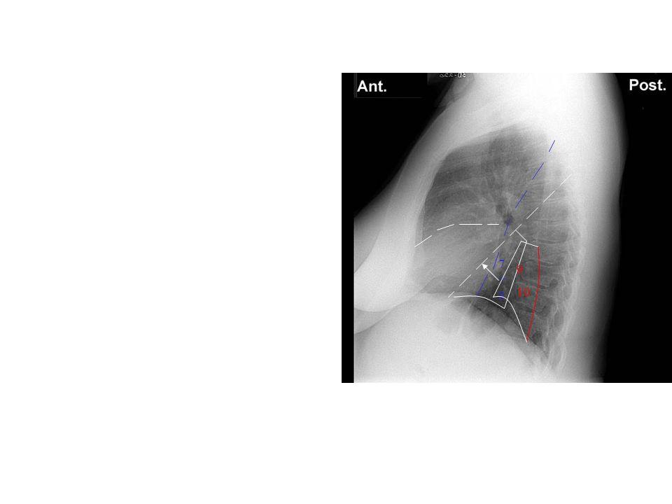 7+8 9 10 8: (7+8) 9, 10: Lateral /Posterior basal