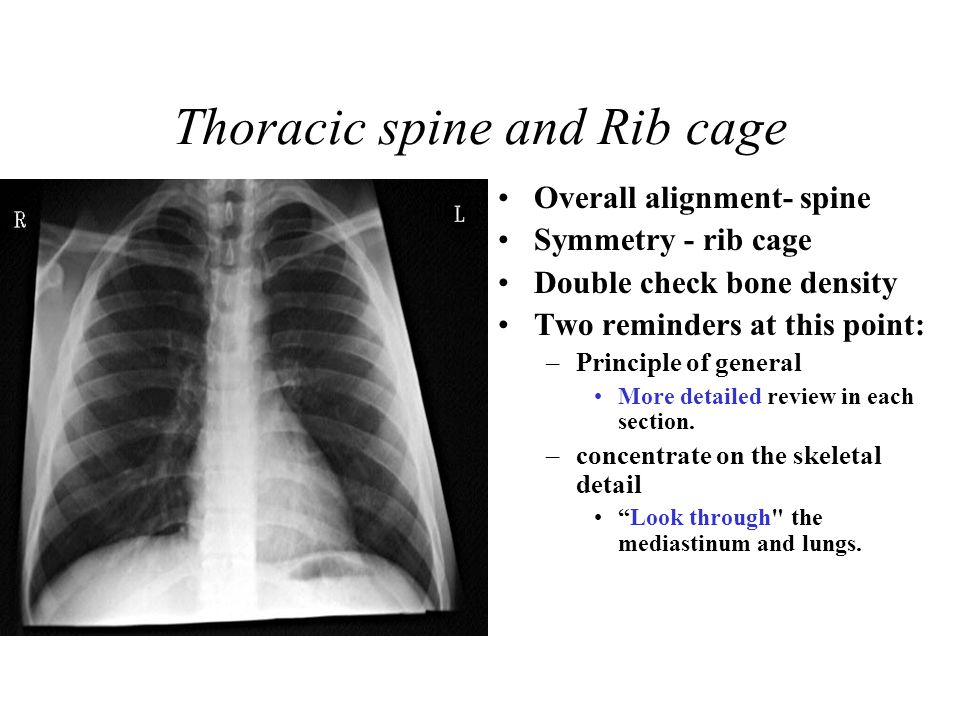 Thoracic spine and Rib cage