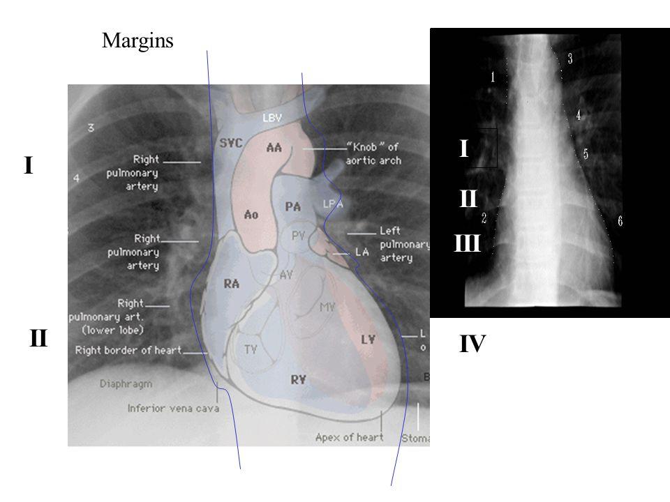 Margins I I II III II * Aortopulmonary window IV