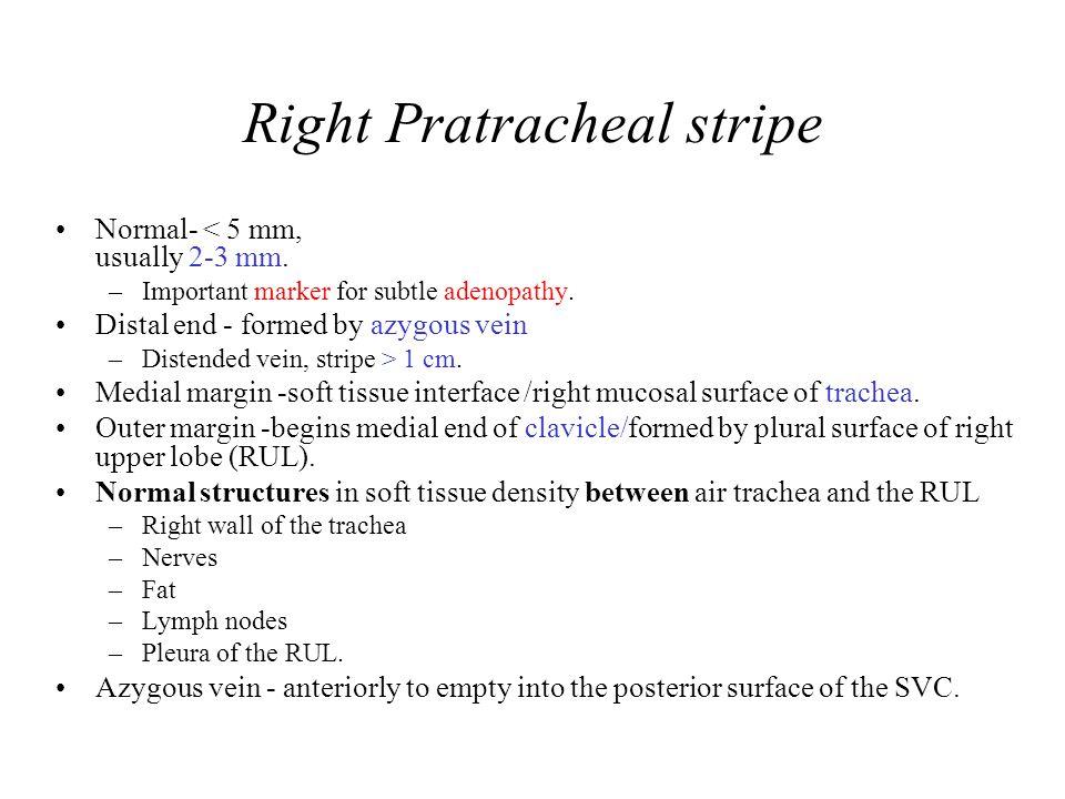 Right Pratracheal stripe