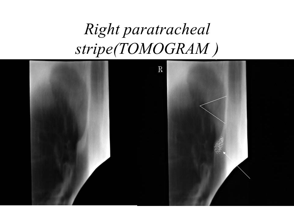 Right paratracheal stripe(TOMOGRAM )