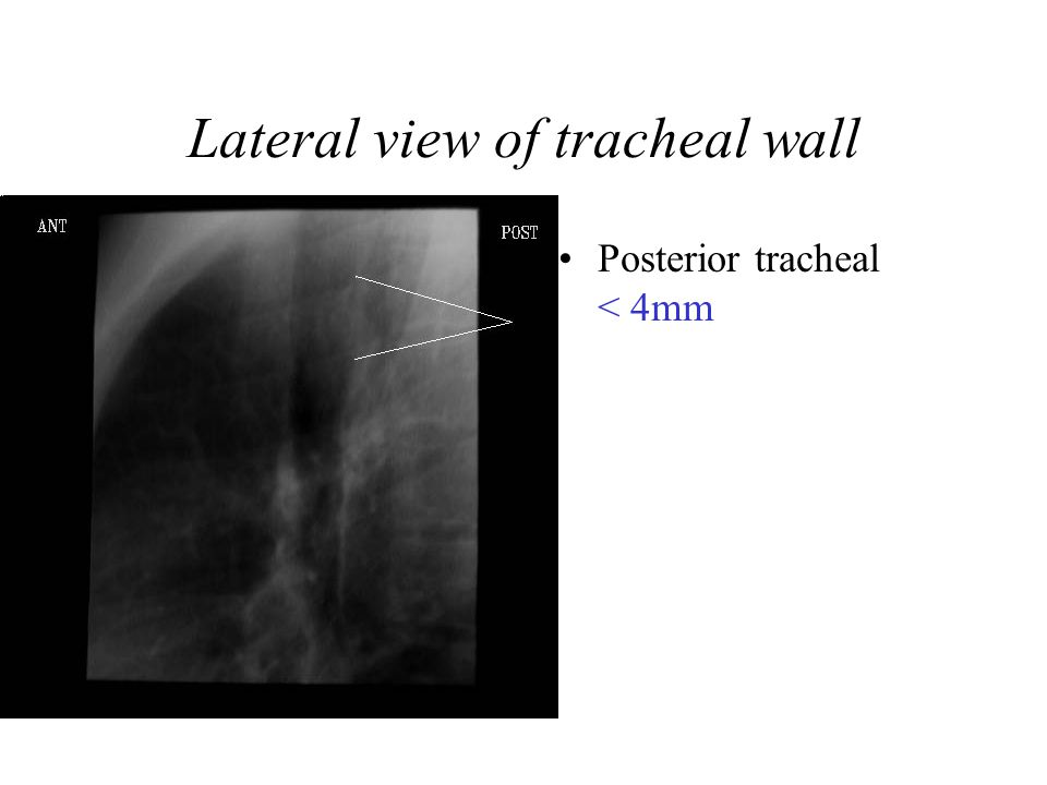 Lateral view of tracheal wall