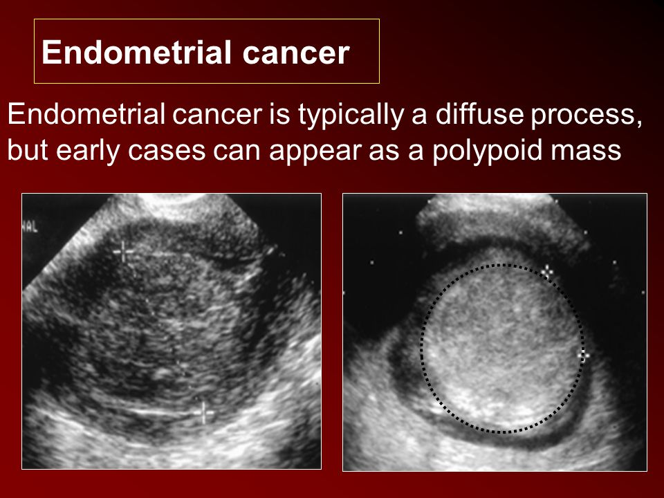 Endometrial cancer Endometrial cancer is typically a diffuse process, but early cases can appear as a polypoid mass.