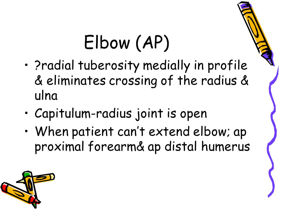 Elbow (AP) radial tuberosity medially in profile & eliminates crossing of the radius & ulna. Capitulum-radius joint is open.