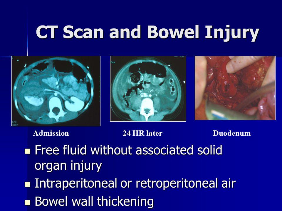 CT Scan and Bowel Injury