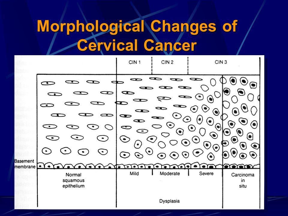 Morphological Changes of Cervical Cancer