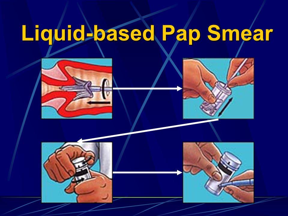 Liquid-based Pap Smear
