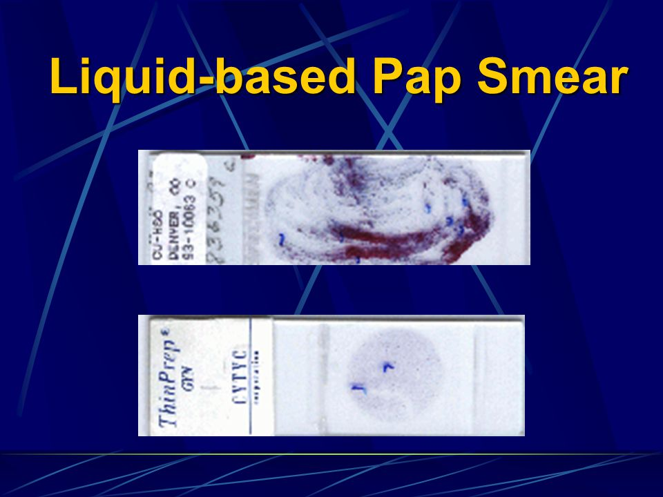 Liquid-based Pap Smear